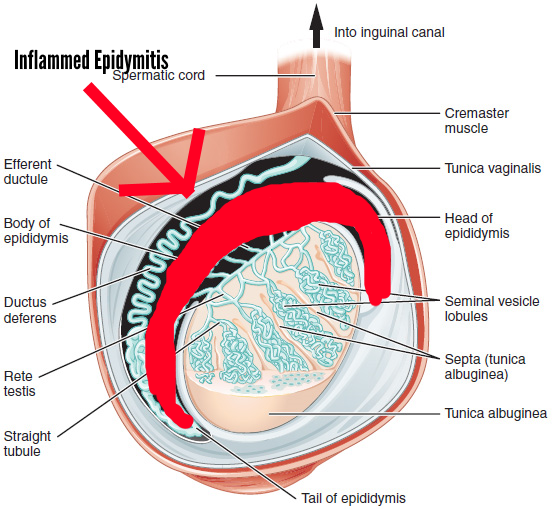 Can Epididymitis Be Caused By Heavy Lifting? Vigilant shows the inflammation of the epididymitis using an image from: Anatomy & Physiology, Connexions Web site. http://cnx.org/content/col11496/1.6/, Jun 19, 2013.