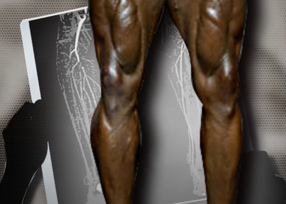 In 2017, Flex Wheeler's legs were significantly smaller. But notice how his right calf looks really unhealthy.